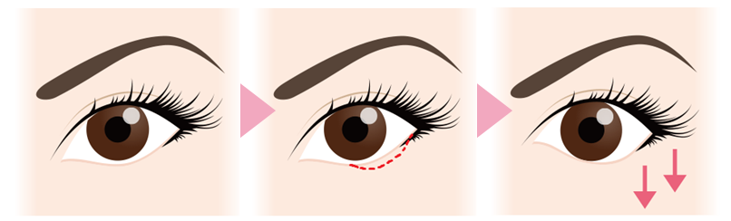 たれ目形成の効果下眼瞼外側が吊り下がっていると、細く小さい目にみられ、きつい印象を持たれることもありますが、下瞼の外側2分の1から3分の1の範囲を切除することで黒目や白目の見える範囲が広がり、目が大きく見える効果があります