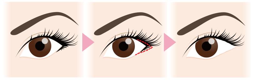 目尻切開の効果目尻上下の皮膚を切除し目尻を延長させることで、黒目や白目の見える範囲が広くなり、目元全体を大きく見せる効果があります