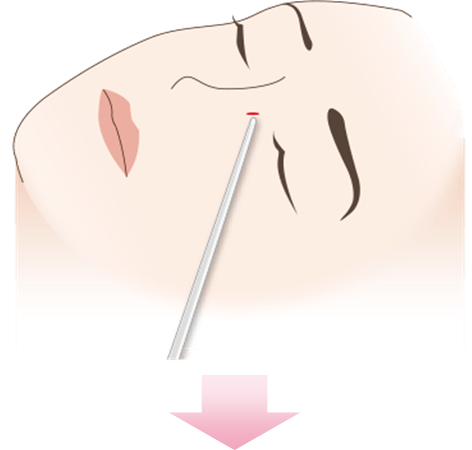 鼻横の数ミリの傷口から外側の骨切りを追加していきます。