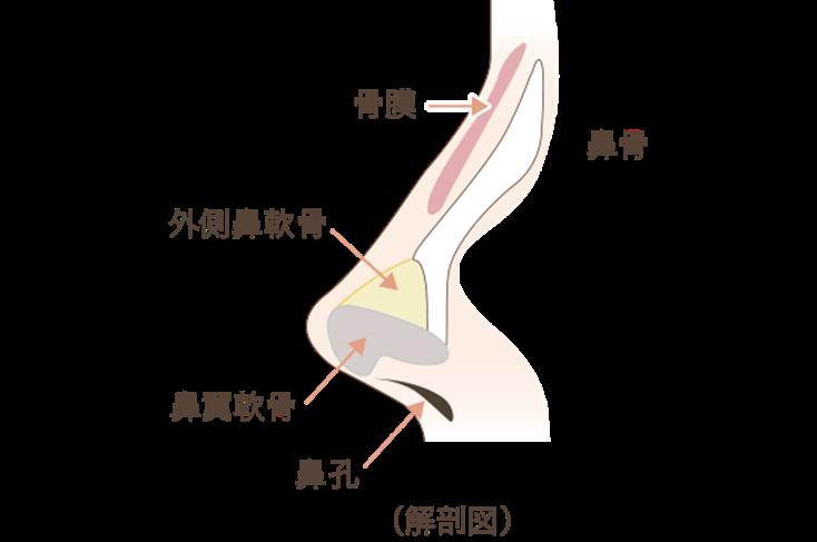 プロテーゼは鼻骨と骨膜(鼻の骨を覆っている膜)の間に挿入します。これを骨膜下に挿入するといいます。