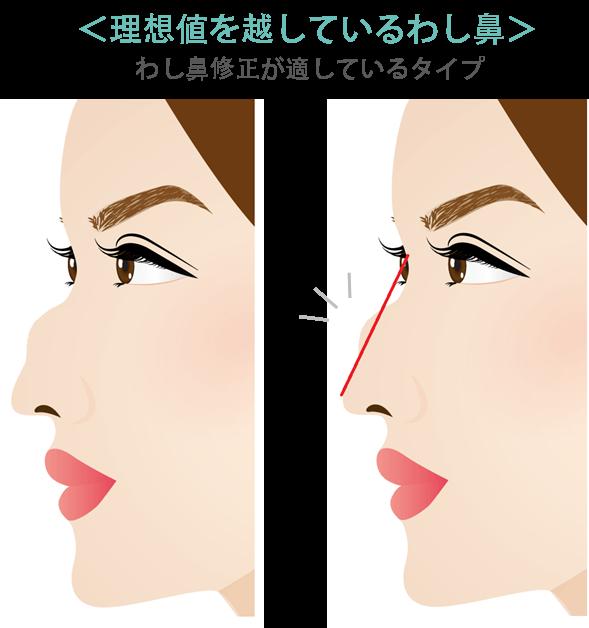 わし鼻修正のポイント1