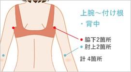 二の腕・振袖の吸引位と傷口の位置2