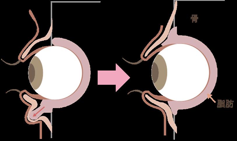 目の下の脂肪取りの効果眼球の保護のために存在する眼球周りの眼窩脂肪が、重力の関係で下がって目の下に突出してきたものを、結膜側から切り取り、目の下のふくらみをフラットにしていく治療です