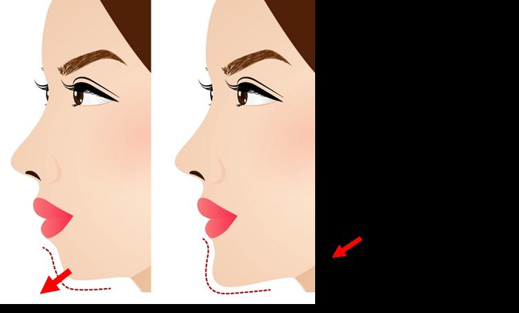 顎のヒアルロン酸注入の注意点2
