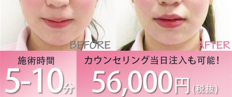 施術時間5~10分カウンセリング当日注入も可能!56,000円(税抜)