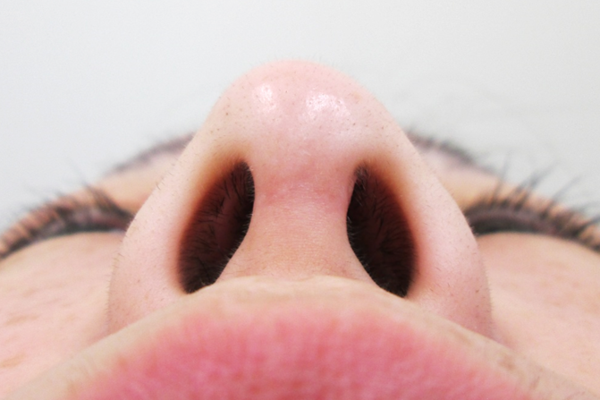 鼻中隔延長の手術ポイント2