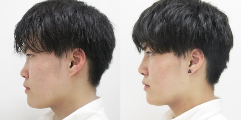 鼻筋が高くなると横顔も美しい男性の方はよりハンサムな印象に