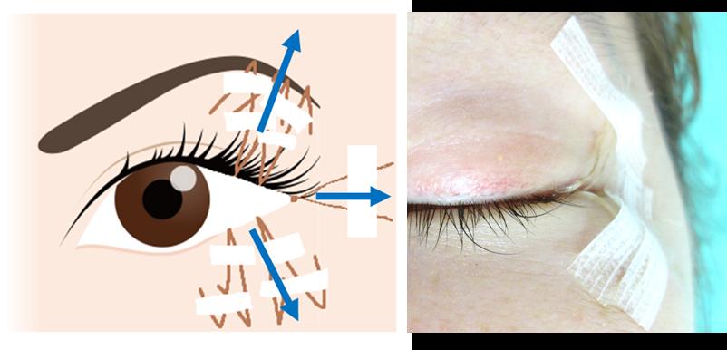 目尻切開の重要なポイント目尻切開は後戻りしやすい部位のため、術後抜糸までの間は、下記イラストの通り3方向にテンションを持たせ効果を最大限に引き出す工夫を行っております