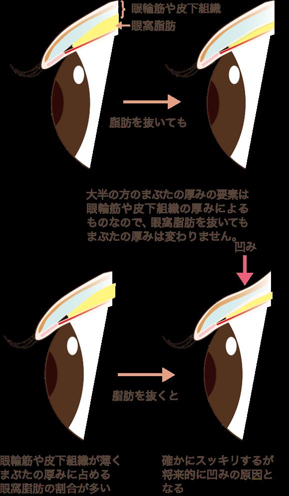 目の上の脂肪取りはまぶたの厚みは変わりません