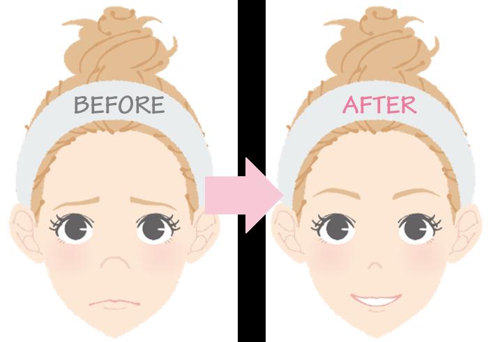 鼻先の丸みが無くなるとお顔のバランスも変わる!?1
