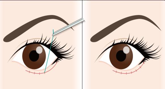 たれ目形成の手術方法①表側の処置2