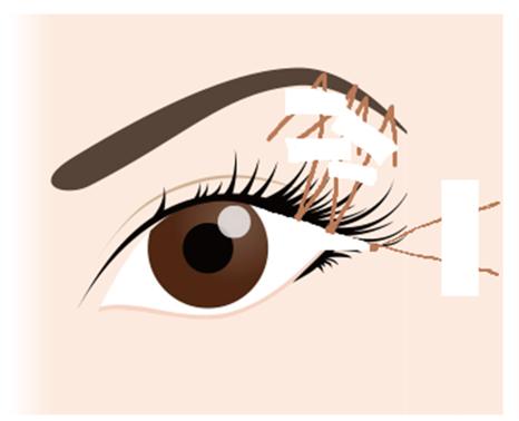 目尻切開の手術方法②上瞼目尻の皮膚を切除