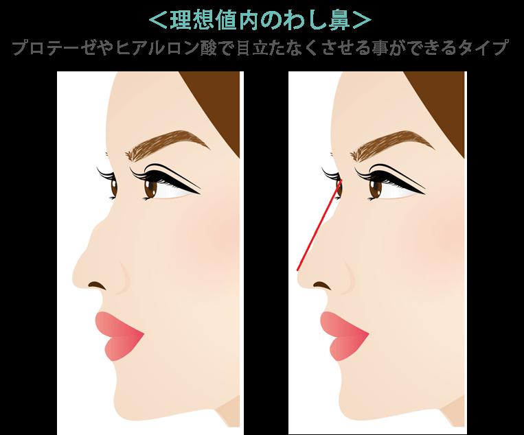 わし鼻修正のポイント2