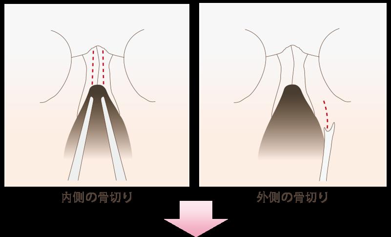 鼻腔内の傷口より鼻骨の内側・外側の骨切りを行います。