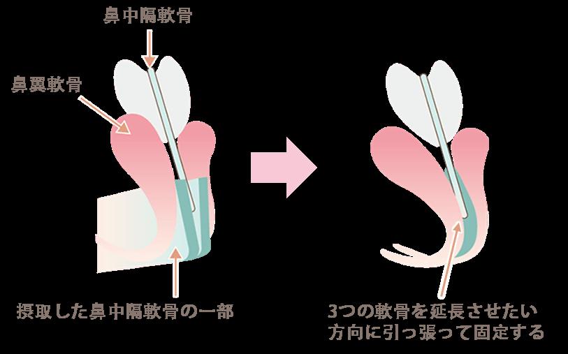 鼻中隔延長の手術ポイント3