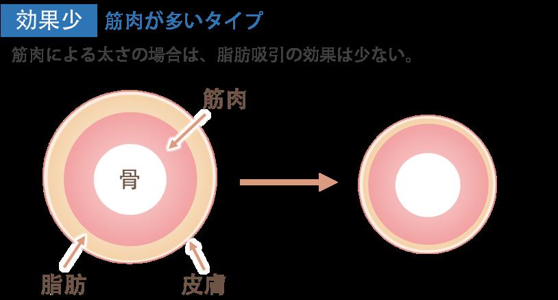 ふくらはぎの脂肪吸引の効果2