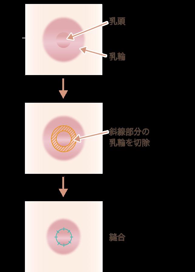乳輪外側を切除する方法