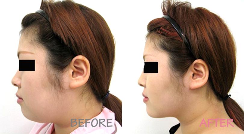 顔の脂肪吸引の症例写真