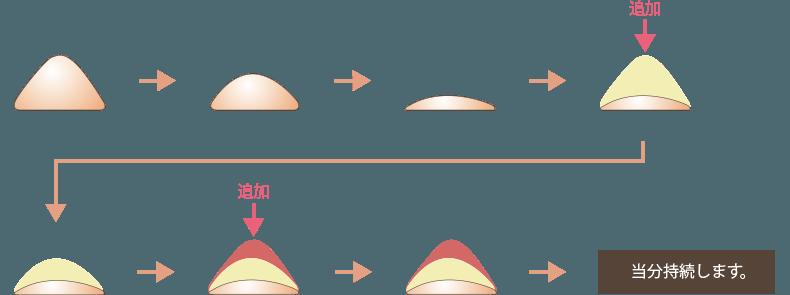 顎のヒアルロン酸注入の注意点1
