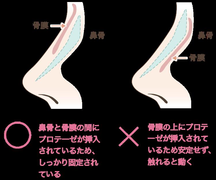 プロテーゼが骨膜上に挿入されてしまうと、術後もプロテーゼが安定せず、触れると動いてしまいます。