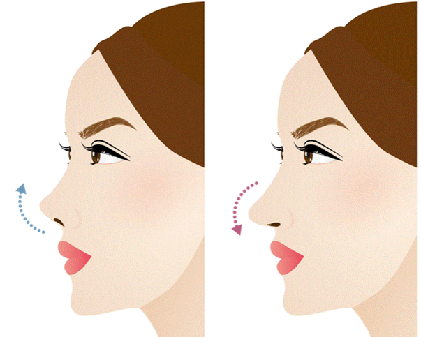 鼻中隔延長の効果