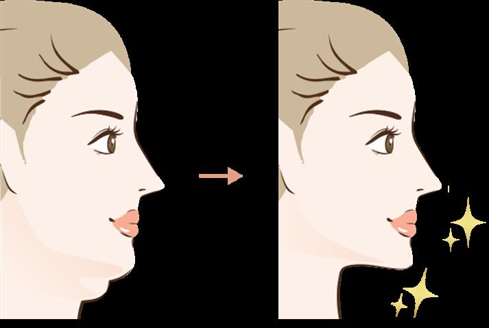 顔の脂肪吸引の効果2