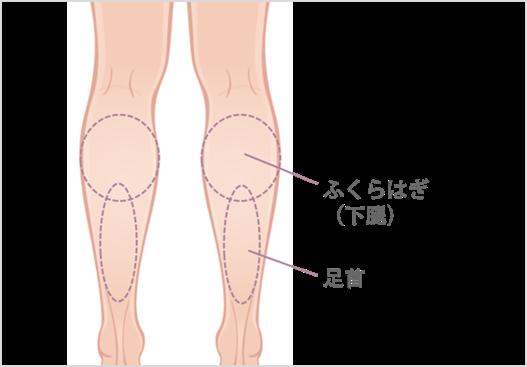 ふくらはぎの吸引部位と傷口の位置1