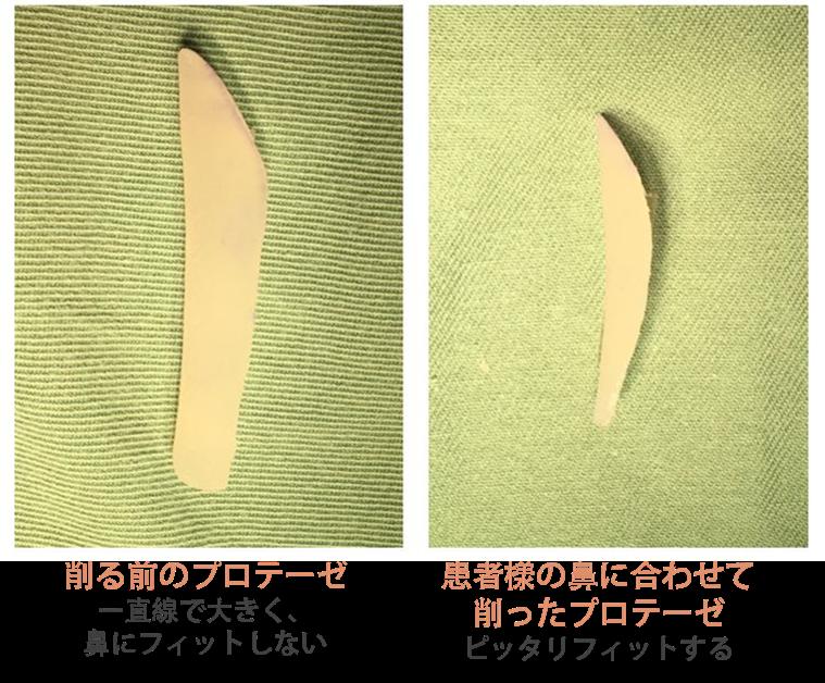 削る前のプロテーゼと削った後のプロテーゼ