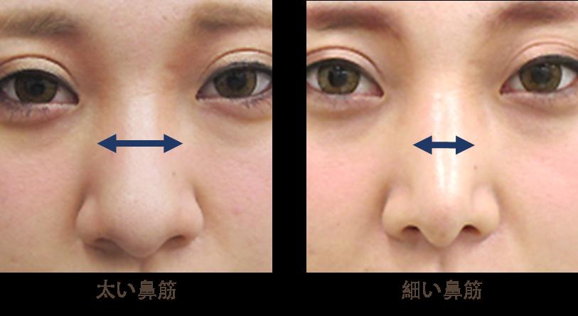 鼻骨骨切りの効果太い鼻筋が細い鼻筋になります。