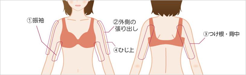 二の腕・振袖の吸引位と傷口の位置1