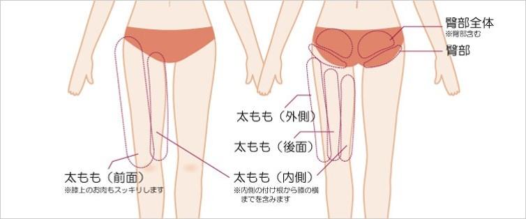 太もも・おしりの吸引部位と傷口の位置1