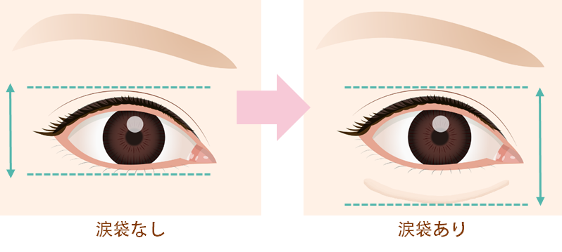 涙袋があることで、目の縦幅が広くなるため、目元全体が大きく見える効果があります