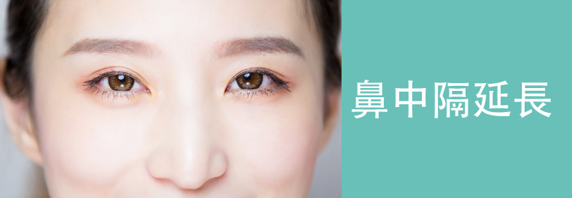 鼻中隔延長の美容整形について