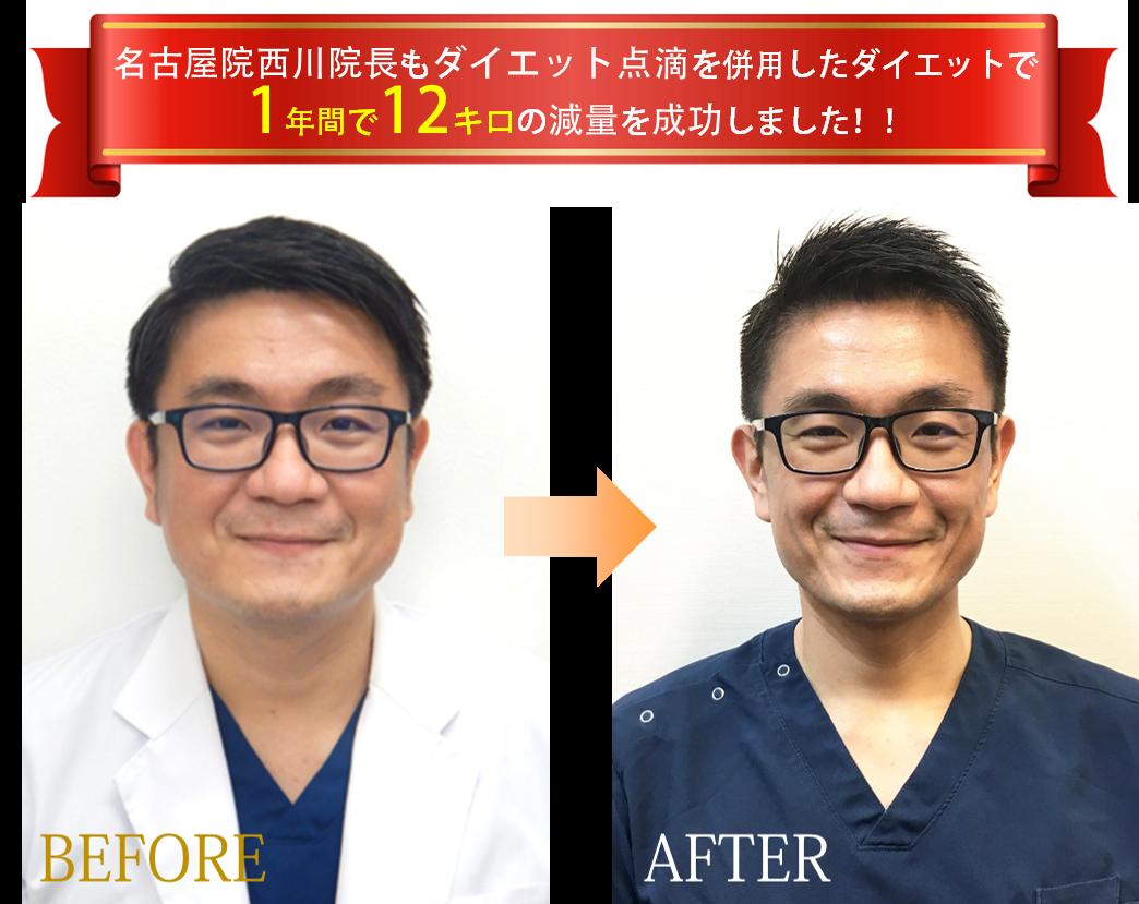 名古屋院の西川院長もダイエット点滴を併用したダイエットで1年間で12キロの減量に成功しました!