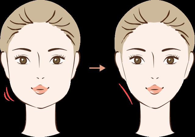顔の脂肪吸引の効果1