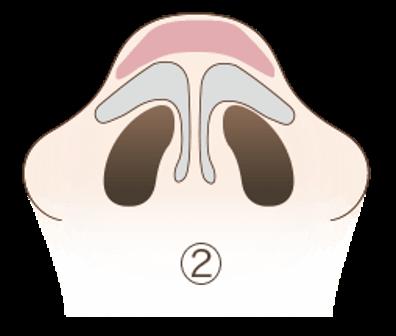 だんご鼻の3つの原因2