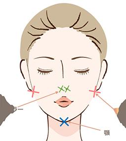 顔の脂肪吸引の吸引部位と傷口の位置2