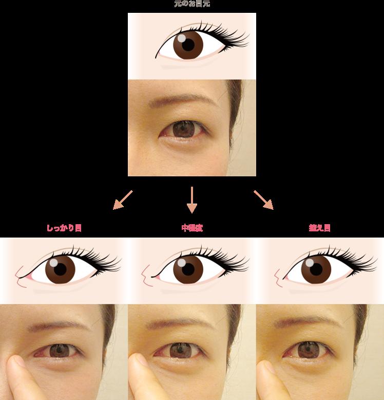 目頭切開のカウンセリングでは、患者様に鏡を見て頂きながら、控え目→中程度→しっかり目まで切開度のシミュレーションを行いイメージして頂きます