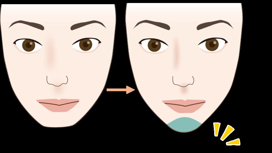 顎のヒアルロン酸注入の効果1
