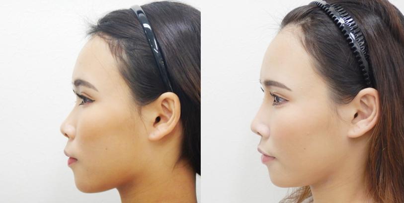 鼻筋が高くなると横顔も美しい女性の方はより洗練された美しい印象に