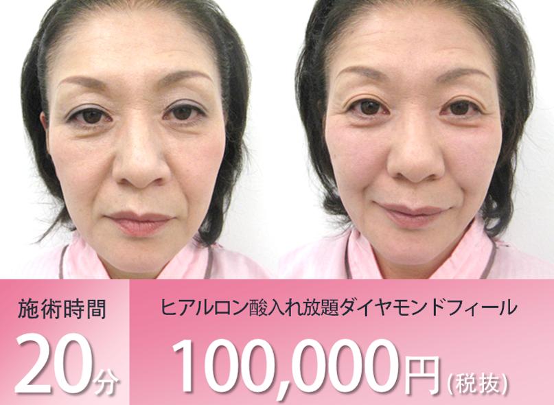 中顔面のヒアルロン酸注入