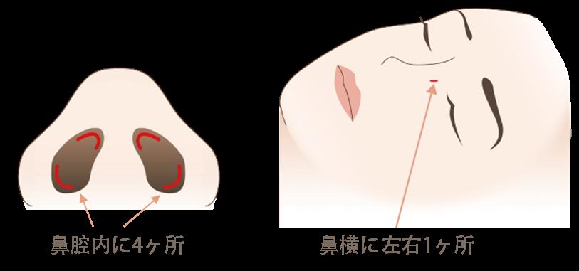 鼻骨骨切りの傷口の位置2