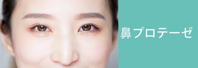 鼻プロテーゼの美容整形について