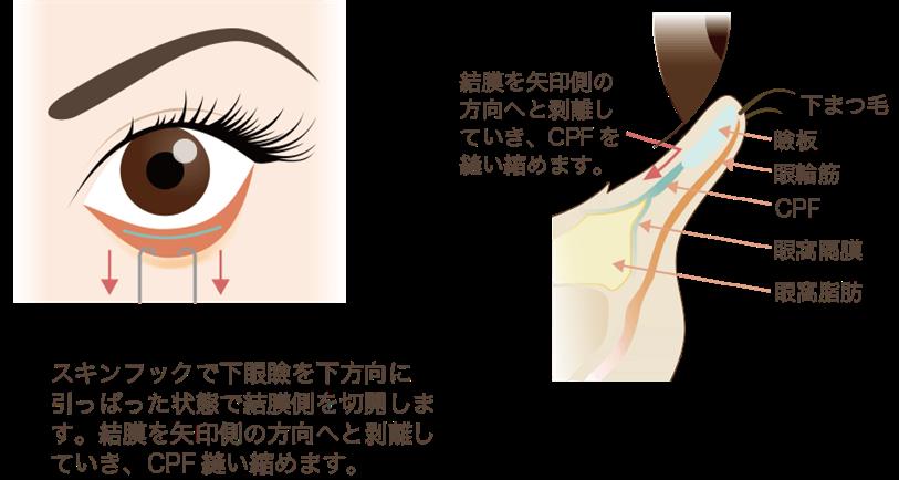 たれ目形成の手術方法①裏側の処置
