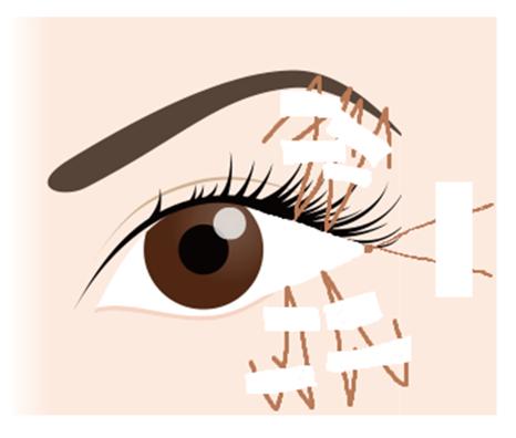 目尻切開の手術方法③下瞼目尻の皮膚を切除