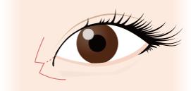 目頭切開の術式・入念なシミュレーション技術①当院の目頭切開の術式はW法(内田法)です