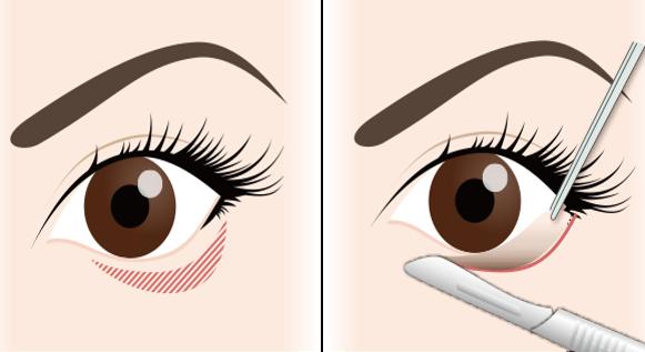 たれ目形成の手術方法①表側の処置1