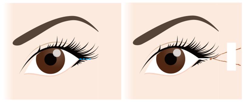 目尻切開の手術方法①デザインに合わせて外眼角を切除