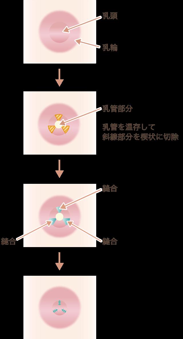 乳頭縮小の施術方法大きさの縮小