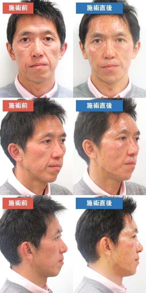 【40~50歳代 男性】お悩み:目の下のたるみや深いほうれい線を自然に改善したい